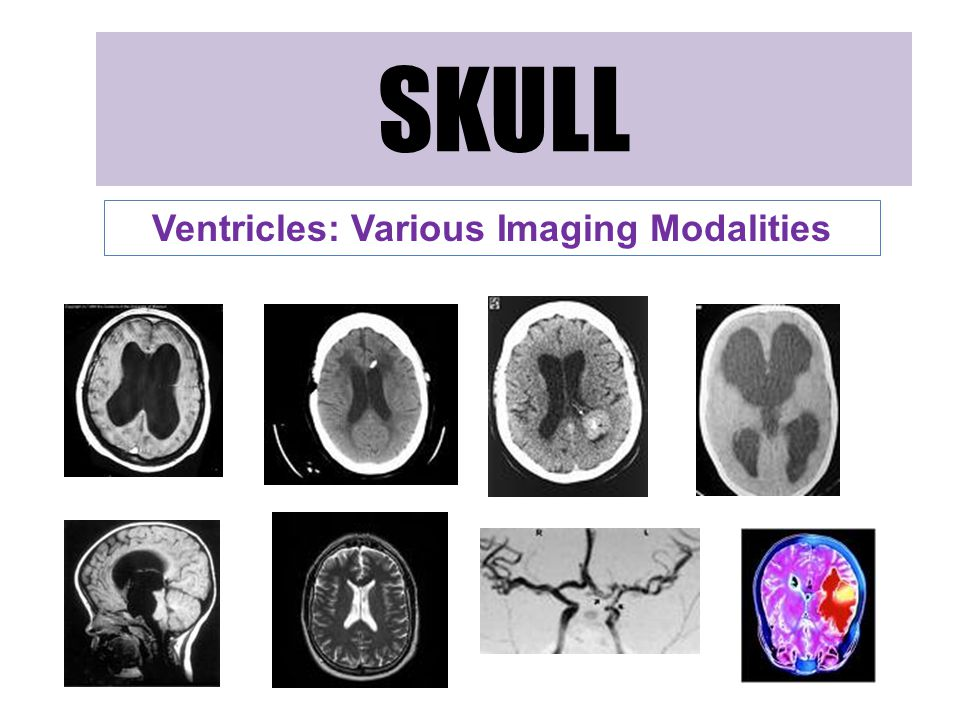 Ventricles: Various Imaging Modalities