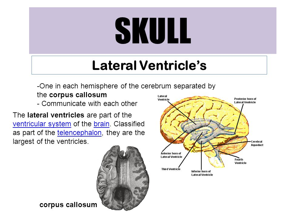 SKULL Lateral Ventricle's