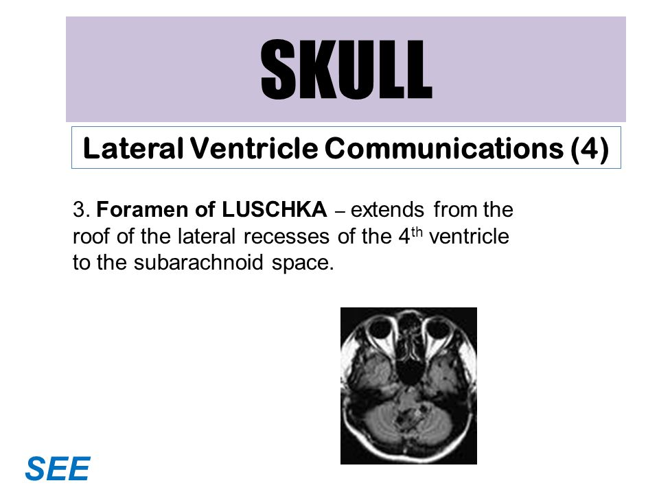 Lateral Ventricle Communications (4)