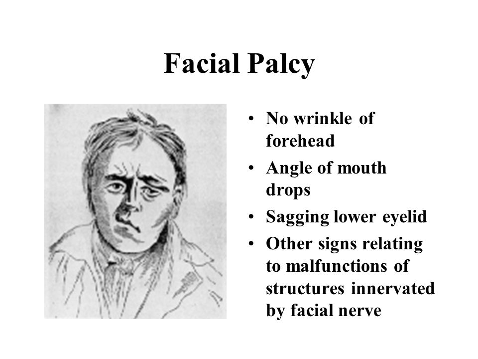 Facial Palcy No wrinkle of forehead Angle of mouth drops