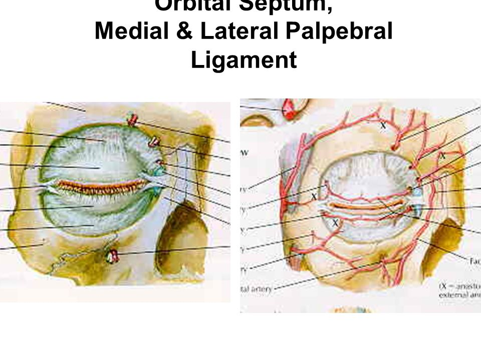 Orbital Septum, Medial & Lateral Palpebral Ligament