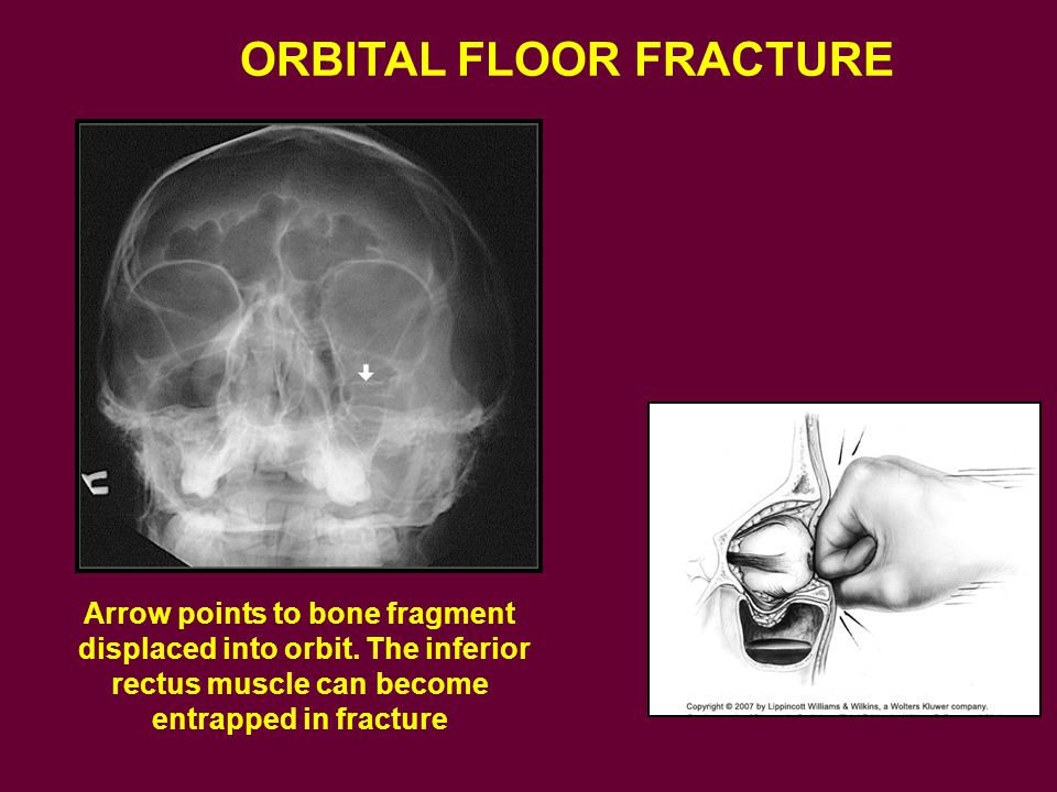 Arrow points to bone fragment
