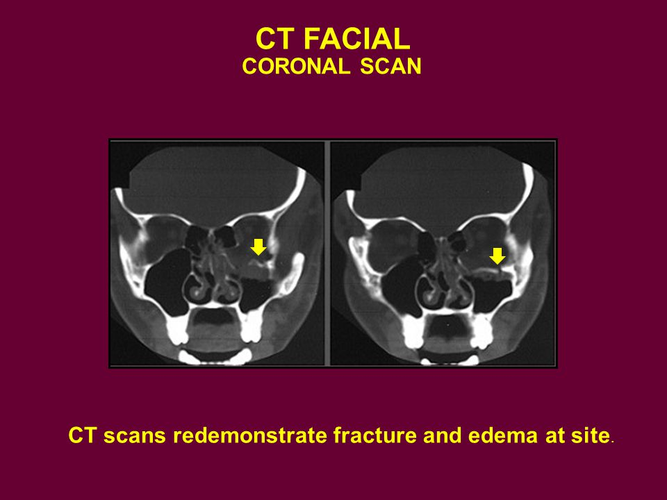 CT FACIAL CORONAL SCAN. Here the trauma shows the inferiorly displaced floor of the orbit which can entrap the inferior rectus muscle.