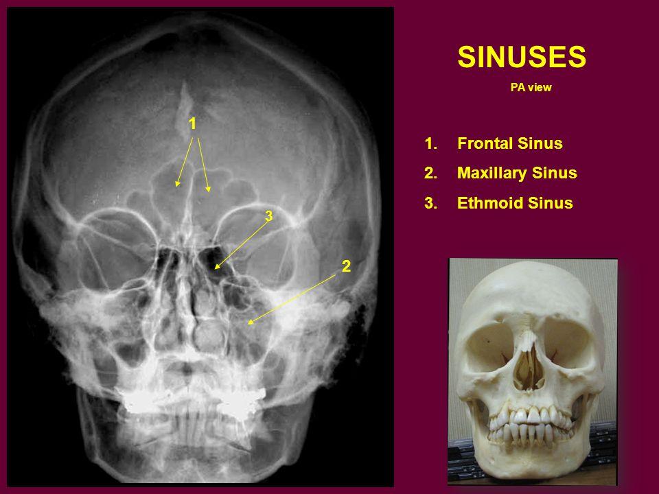 SINUSES PA view Frontal Sinus Maxillary Sinus Ethmoid Sinus 1 3 2