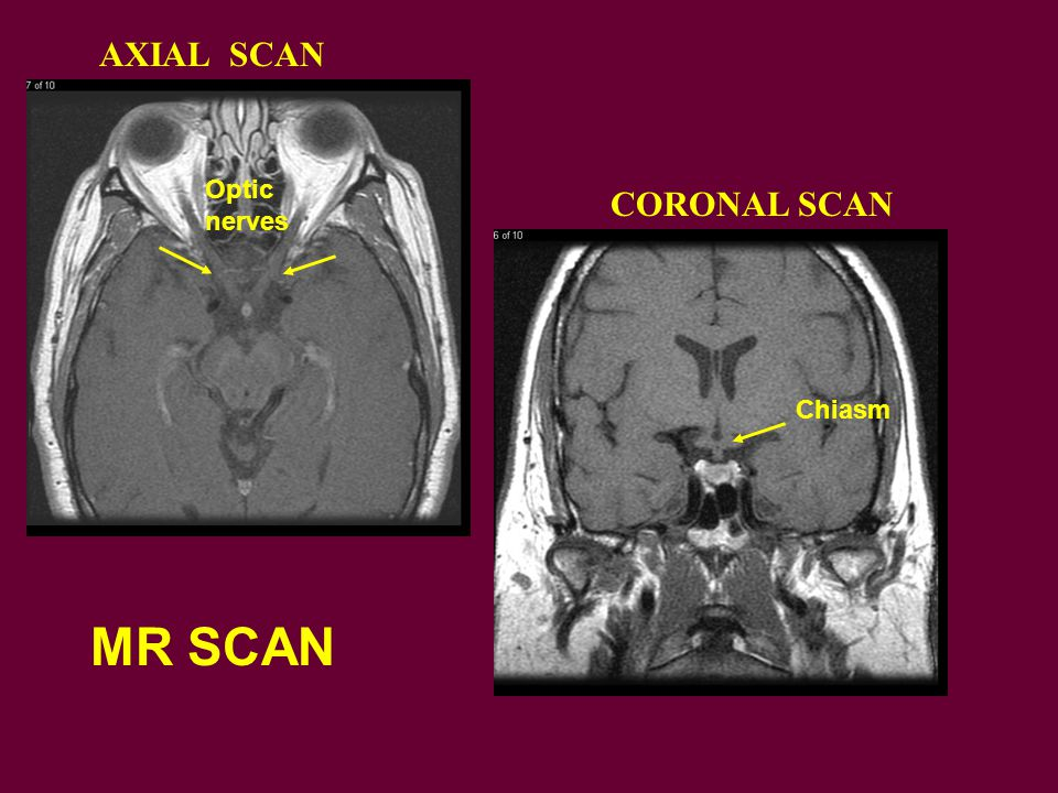 MR SCAN AXIAL SCAN CORONAL SCAN Optic nerves Chiasm