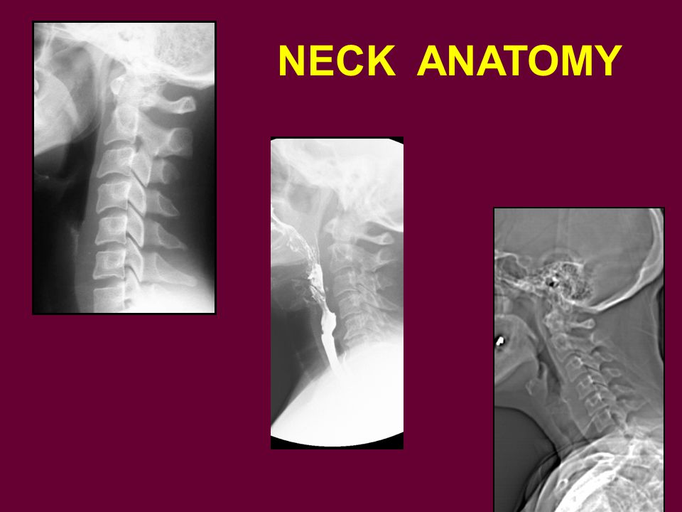 NECK ANATOMY To now move to more soft tissue anatomy of the oral cavity and neck