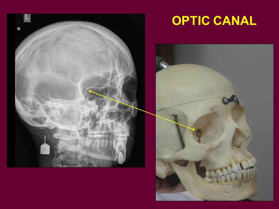 OPTIC CANAL Here on this oblique view the optic canal is seen along the medial border of the superior orbital fissure.