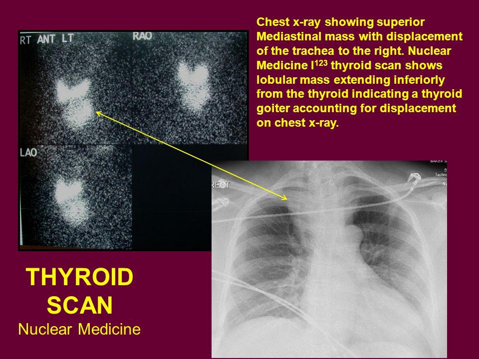 THYROID SCAN Nuclear Medicine