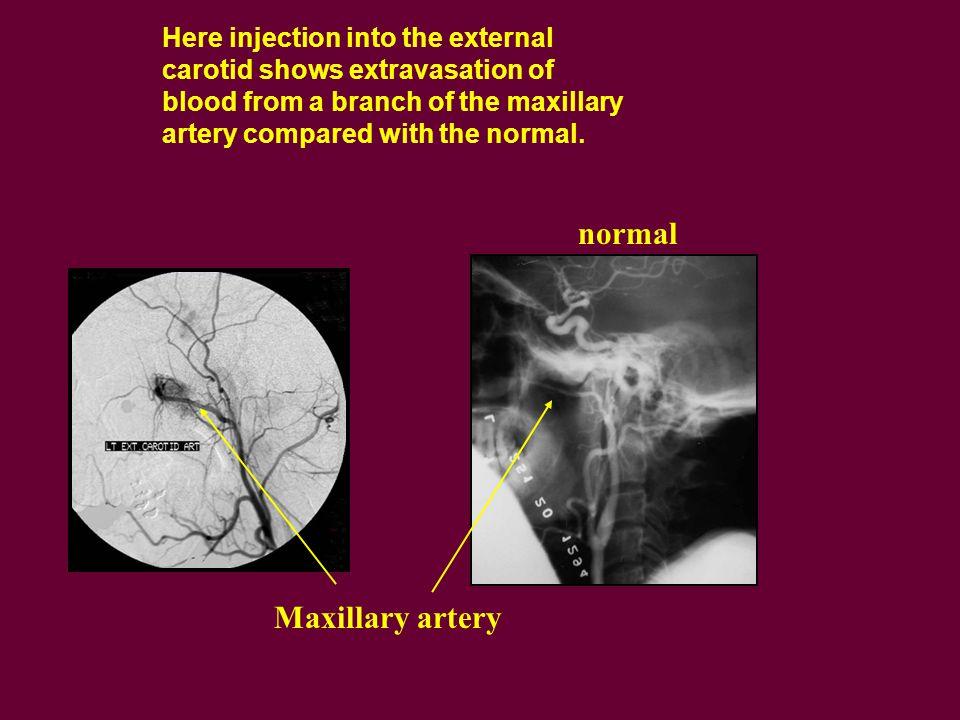 normal Maxillary artery