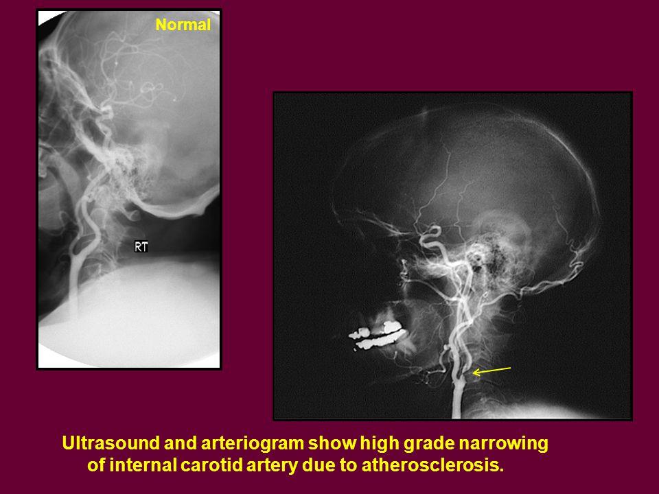 Ultrasound and arteriogram show high grade narrowing