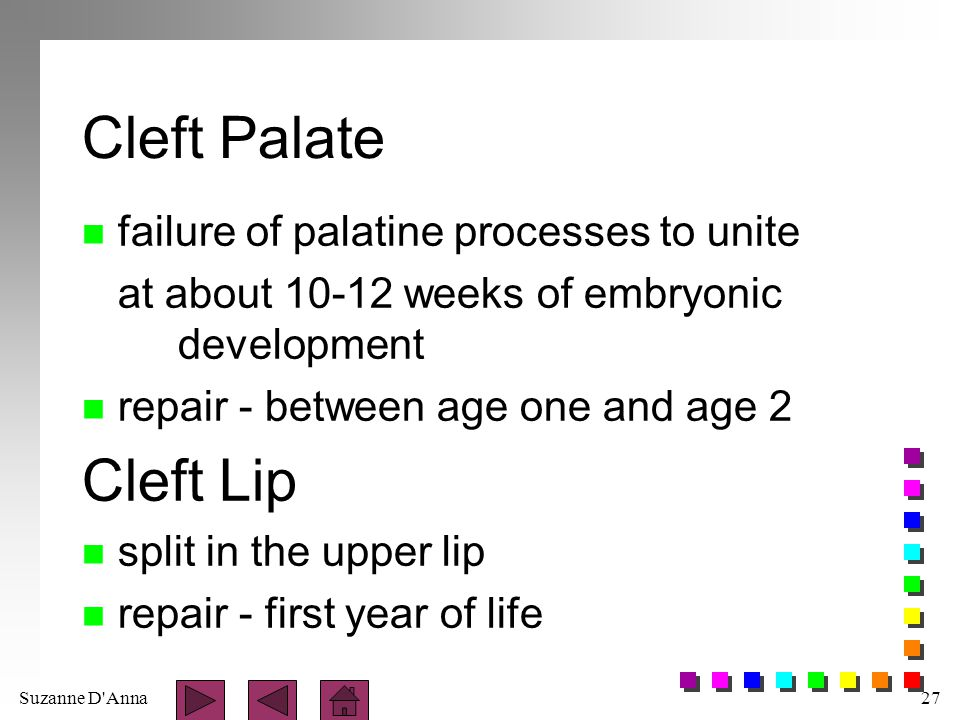 Cleft Palate Cleft Lip failure of palatine processes to unite
