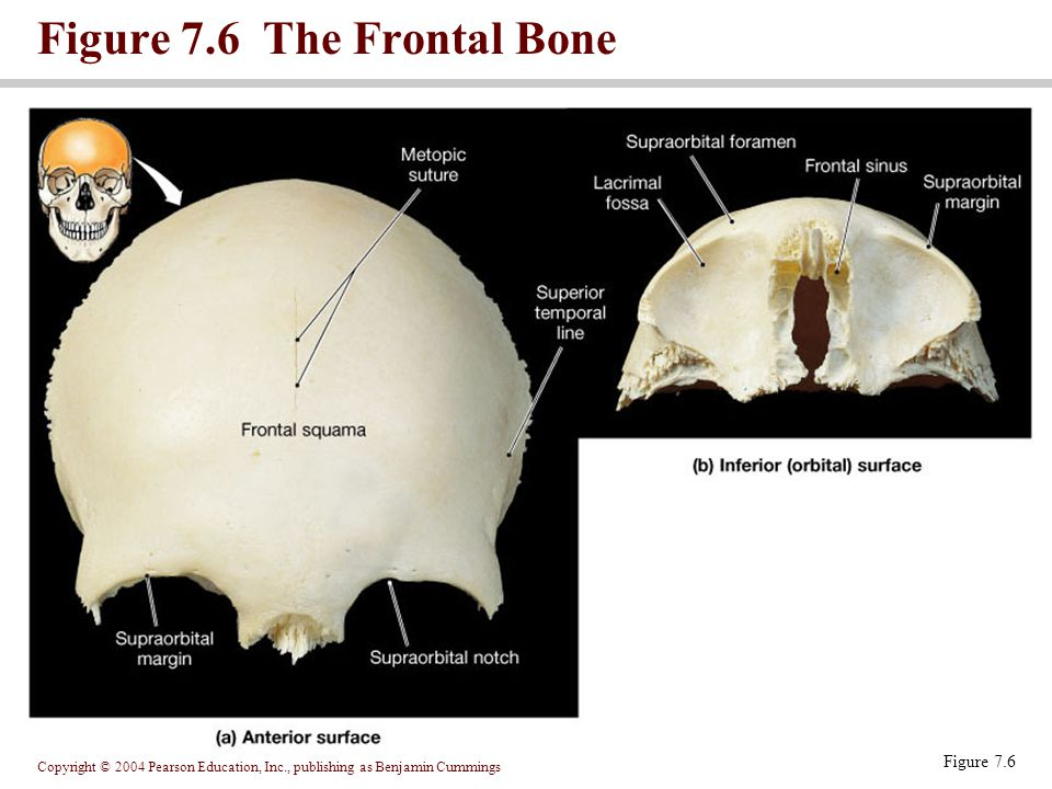 Figure 7.6 The Frontal Bone