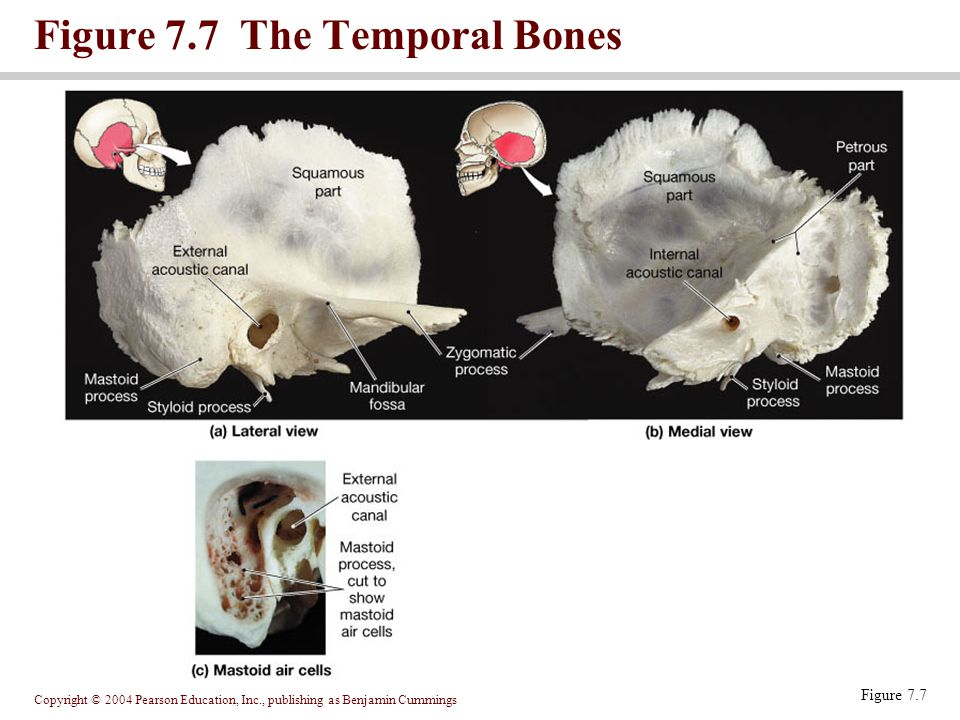Figure 7.7 The Temporal Bones
