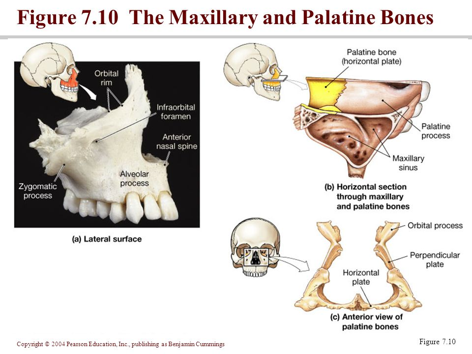 Figure 7.10 The Maxillary and Palatine Bones