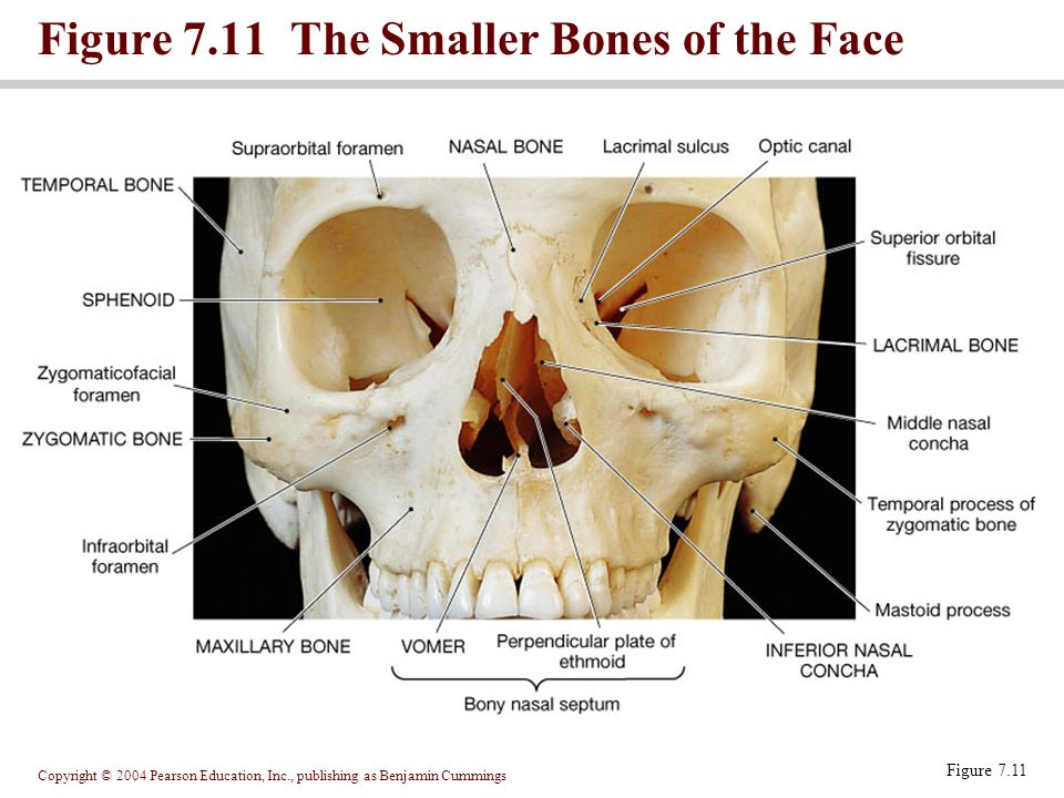 Figure 7.11 The Smaller Bones of the Face