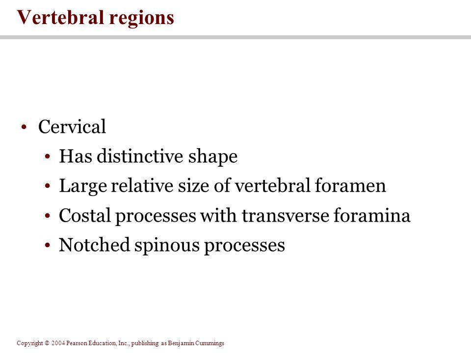 Vertebral regions Cervical Has distinctive shape
