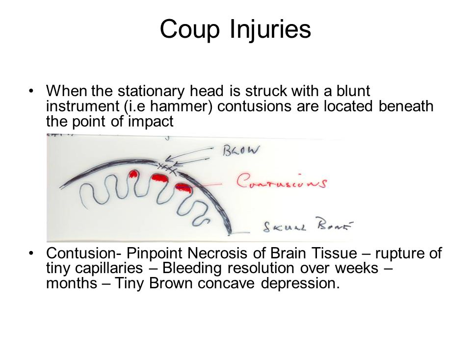 Coup Injuries When the stationary head is struck with a blunt instrument (i.e hammer) contusions are located beneath the point of impact.