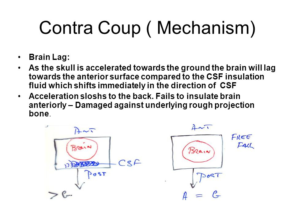 Contra Coup ( Mechanism)
