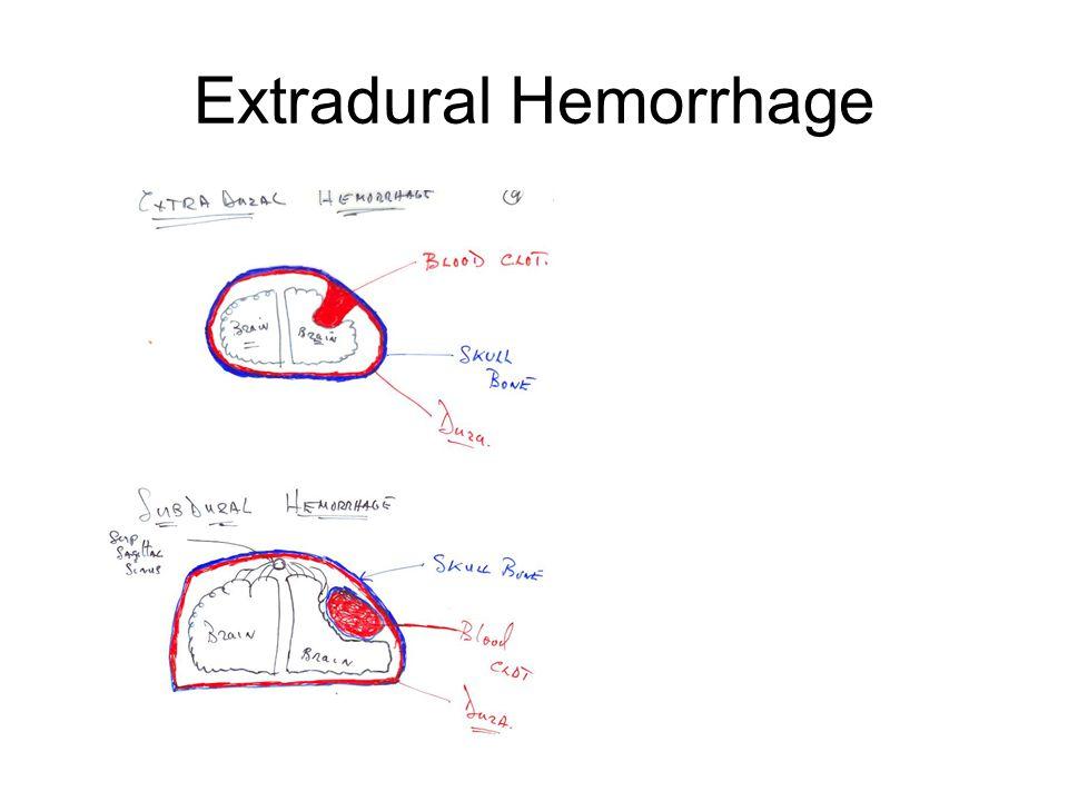 Extradural Hemorrhage