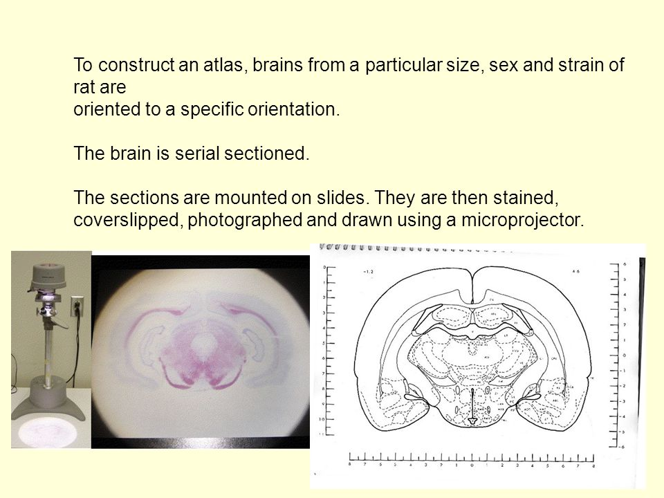To construct an atlas, brains from a particular size, sex and strain of rat are
