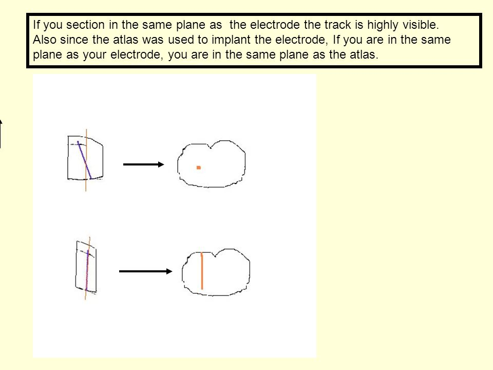 If you section in the same plane as the electrode the track is highly visible.
