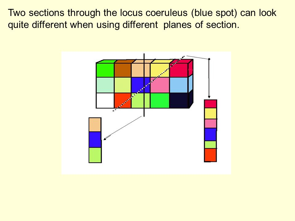 Two sections through the locus coeruleus (blue spot) can look quite different when using different planes of section.
