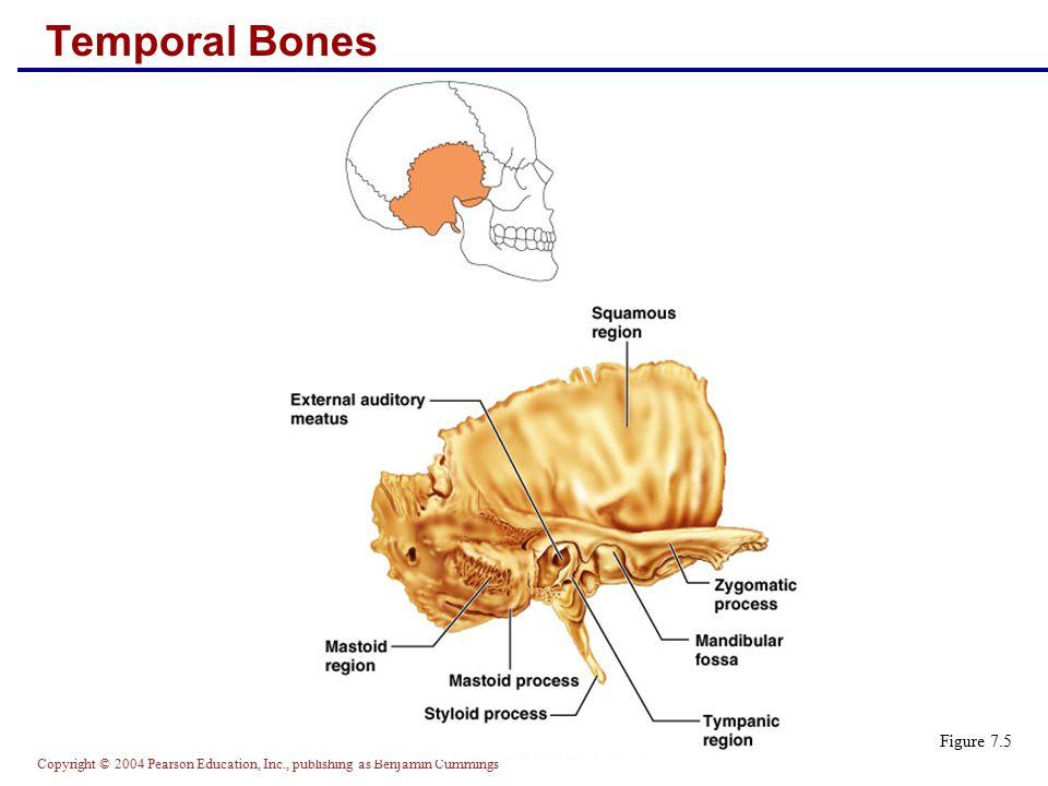 Temporal Bones Figure 7.5