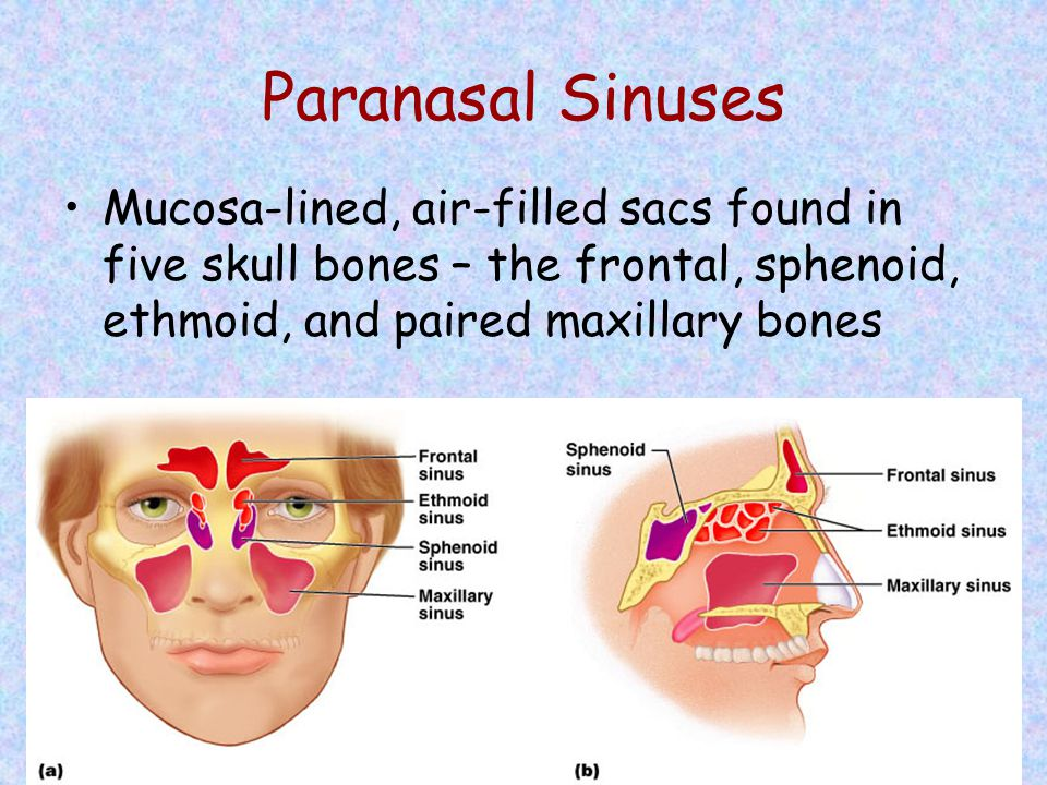 Paranasal Sinuses Mucosa-lined, air-filled sacs found in five skull bones – the frontal, sphenoid, ethmoid, and paired maxillary bones.
