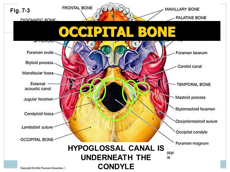HYPOGLOSSAL CANAL IS UNDERNEATH THE CONDYLE