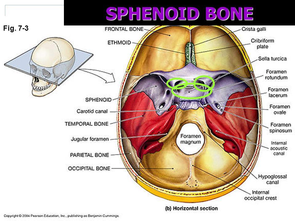 the axial skeleton & fetal skull - ppt video online download, Sphenoid