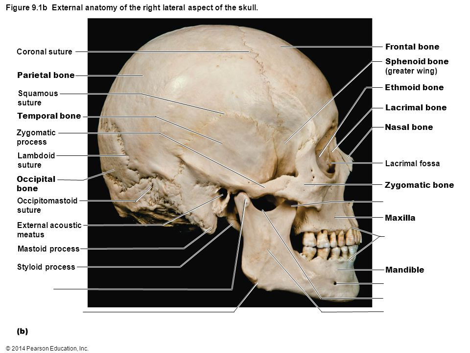 Figure 9.1b External anatomy of the right lateral aspect of the skull.
