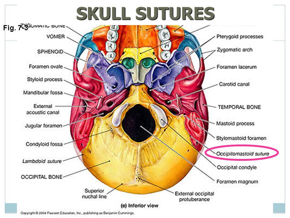 SKULL SUTURES Fig. 7-3