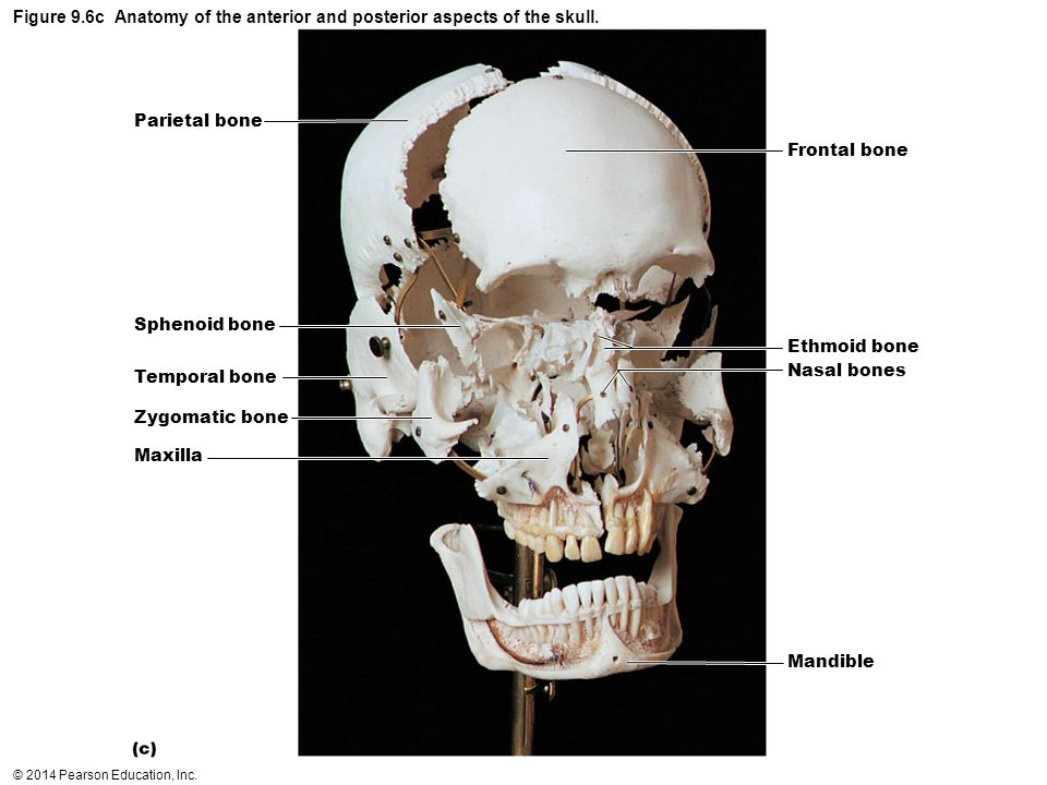 Figure 9.6c Anatomy of the anterior and posterior aspects of the skull.