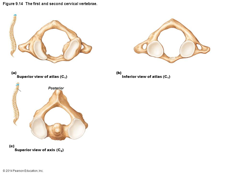 Figure 9.14 The first and second cervical vertebrae.