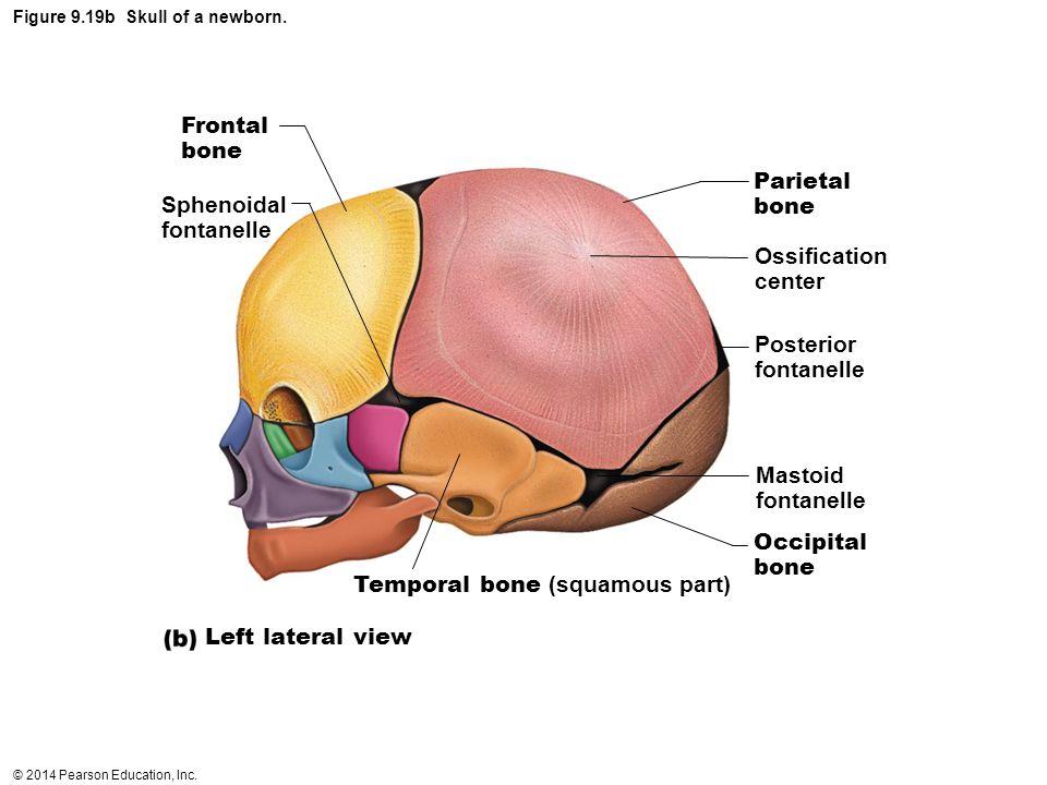 Figure 9.19b Skull of a newborn.