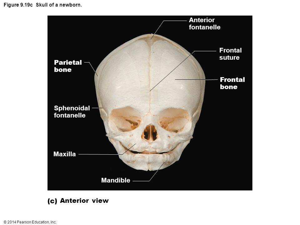 Figure 9.19c Skull of a newborn.