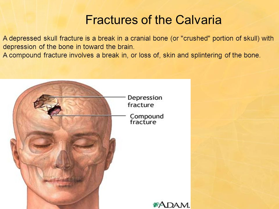 Fractures of the Calvaria