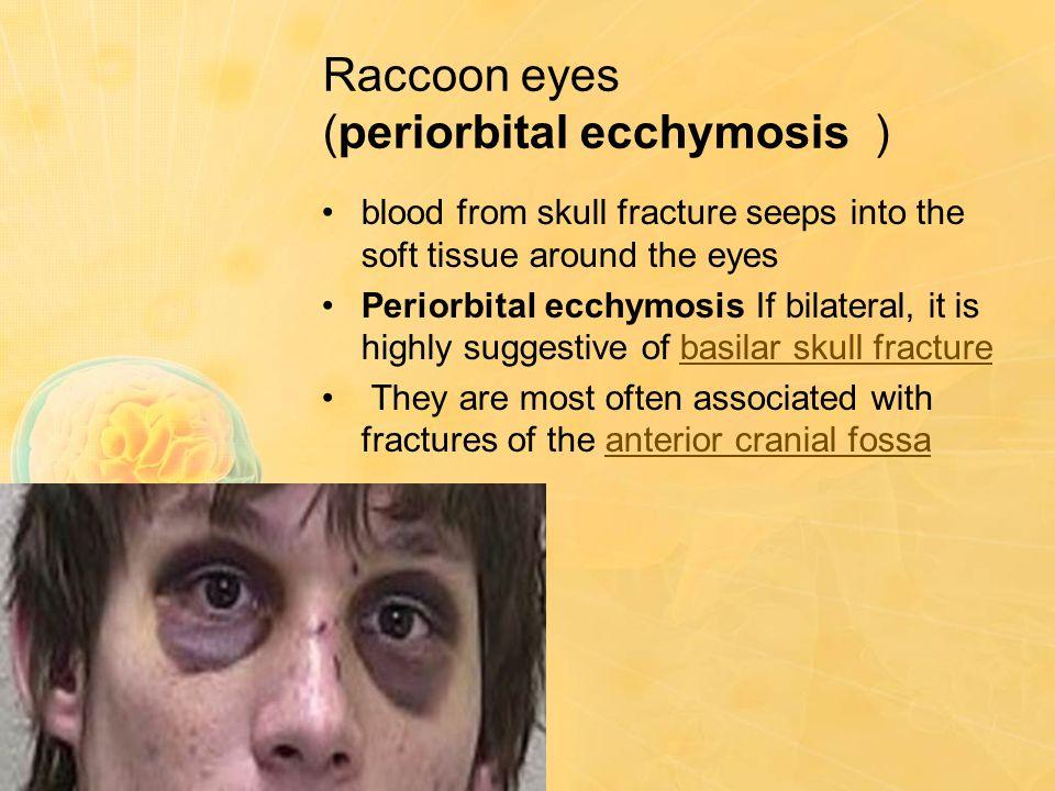 Raccoon eyes (periorbital ecchymosis )