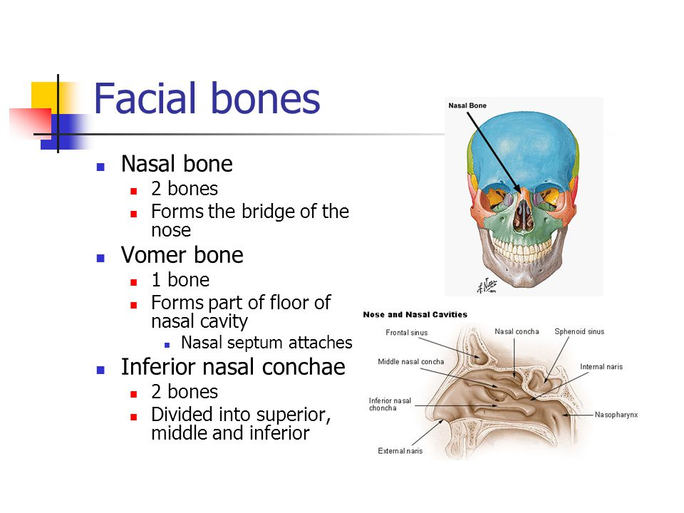 Chapter 7 bones of the cranium ppt video online download for Floor of nasal cavity