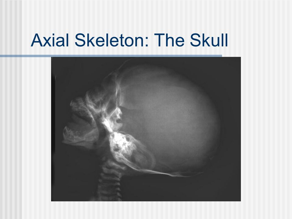 Axial Skeleton: The Skull