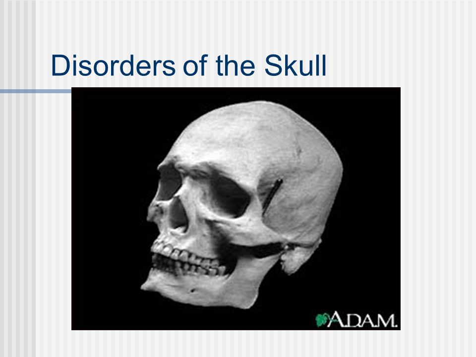 Disorders of the Skull