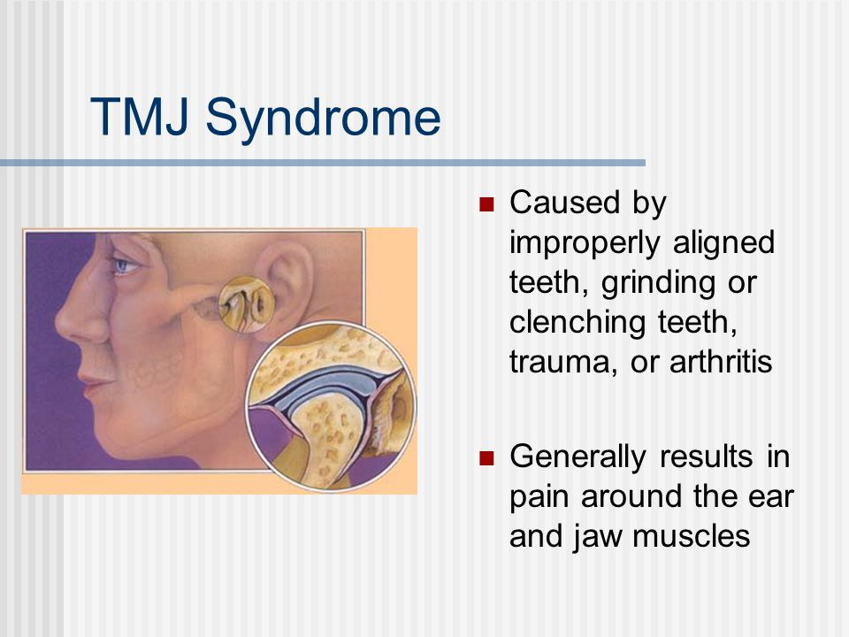 TMJ Syndrome Caused by improperly aligned teeth, grinding or clenching teeth, trauma, or arthritis.