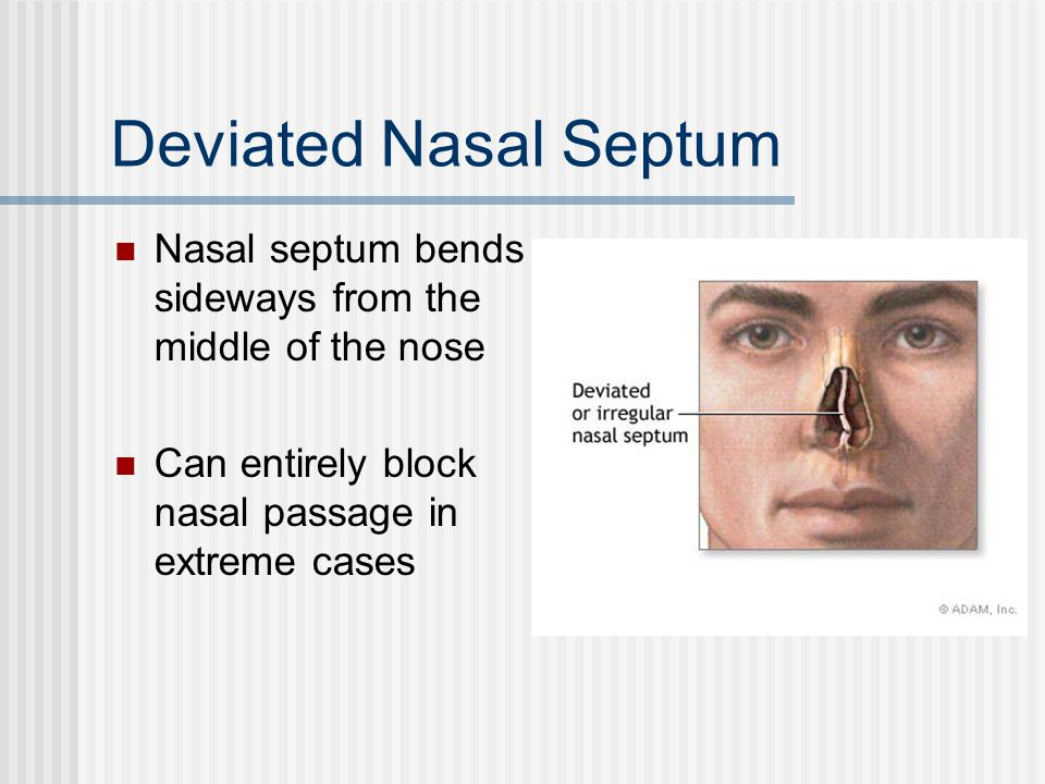 Deviated Nasal Septum Nasal septum bends sideways from the middle of the nose.