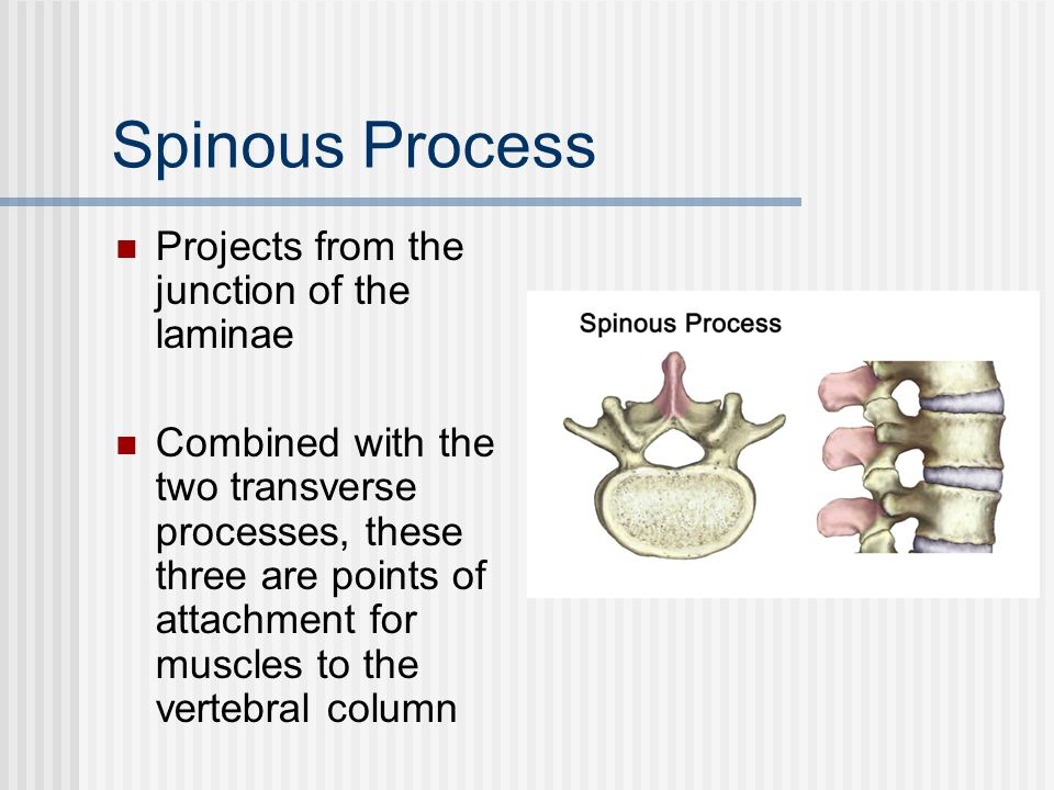Spinous Process Projects from the junction of the laminae
