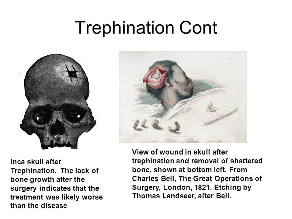 Trephination Cont