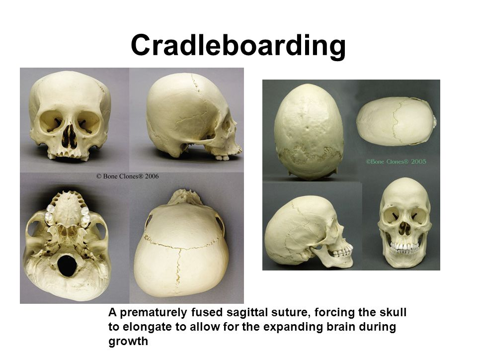 Cradleboarding A prematurely fused sagittal suture, forcing the skull to elongate to allow for the expanding brain during growth.