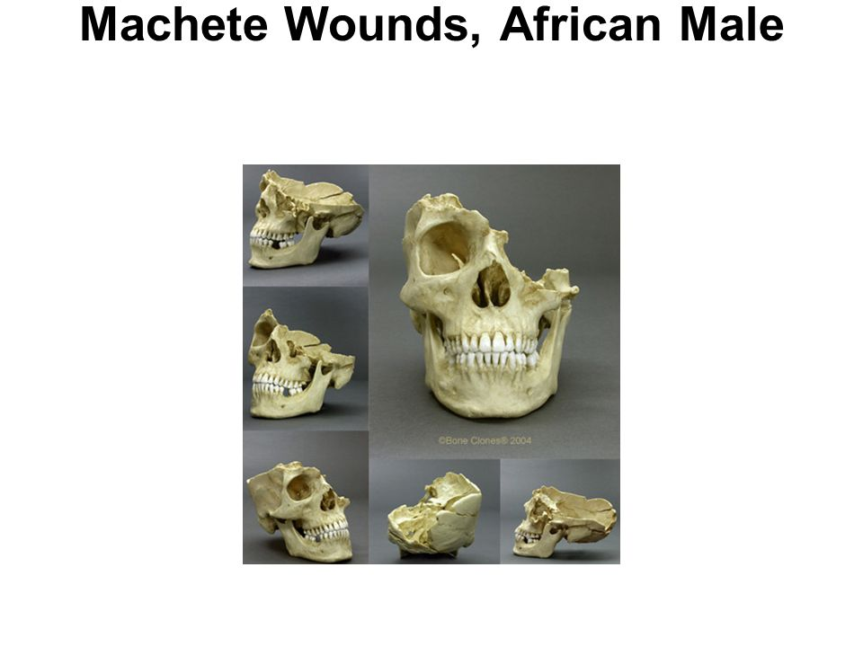 Machete Wounds, African Male