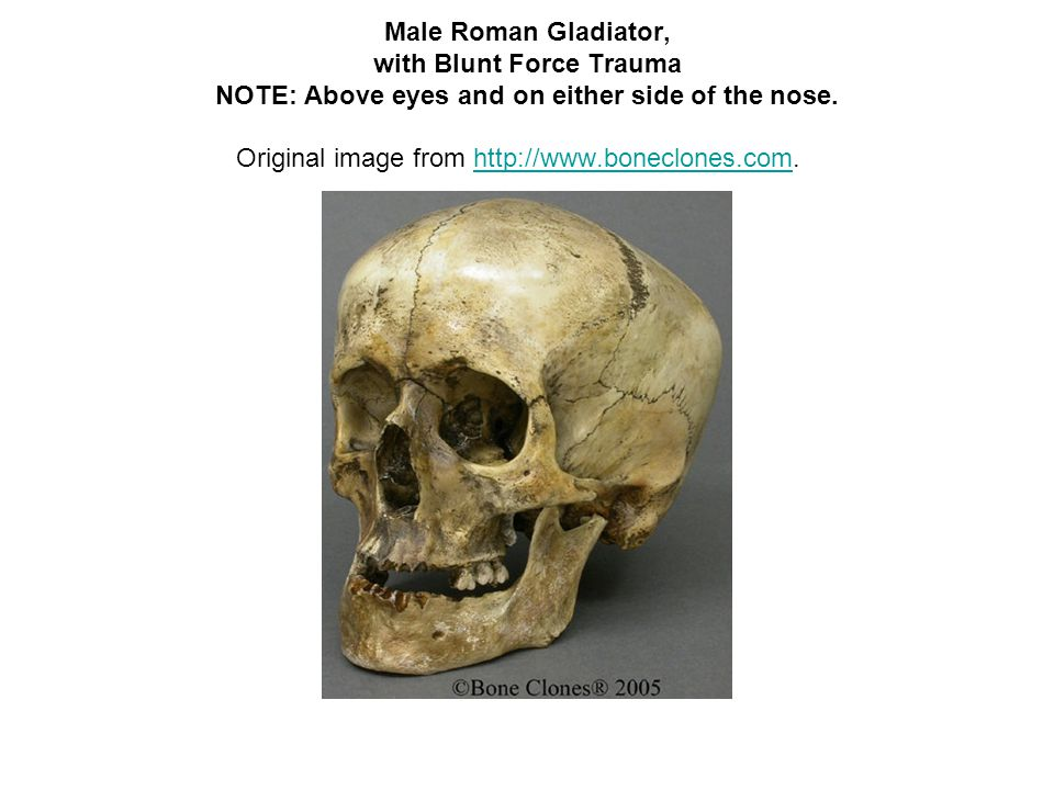 Male Roman Gladiator, with Blunt Force Trauma NOTE: Above eyes and on either side of the nose.