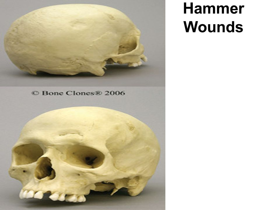 Hammer Wounds