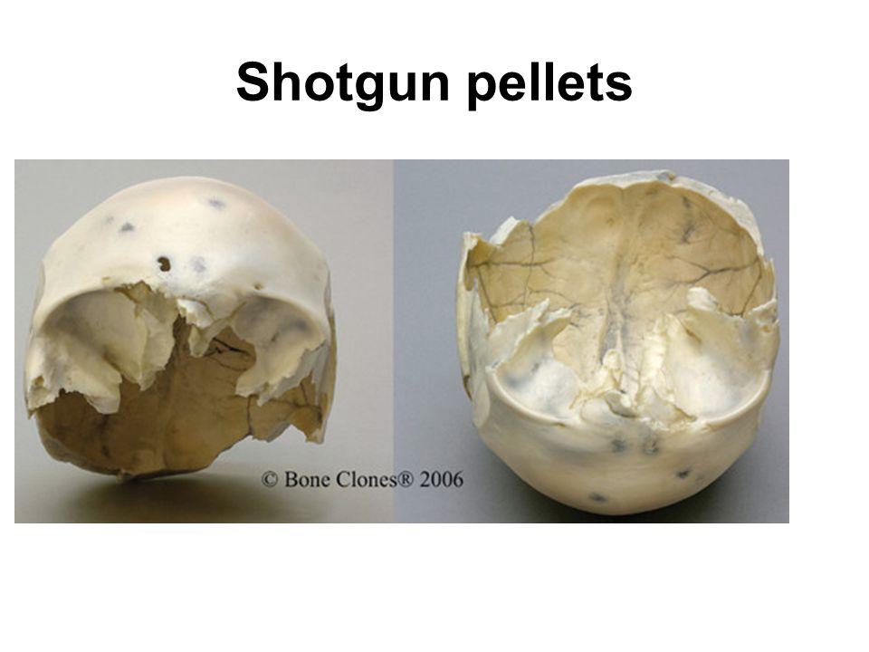 Shotgun pellets